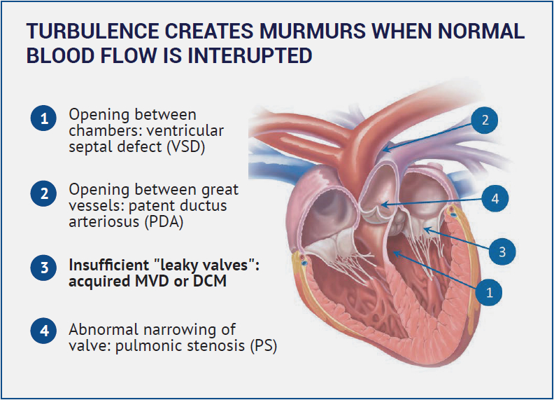 TURBULENCE CREATES MURMURS WHEN NORMAL BLOOD FLOW IS INTERUPTED